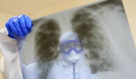 За сутки в России выявили новый максимум случаев заражения коронавирусом за пандемию