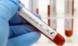 В Чеченской Республике за сутки выявили 12 случаев коронавируса