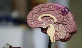В Чеченской Республике впервые станет доступна возможность проведения биопсии головного мозга
