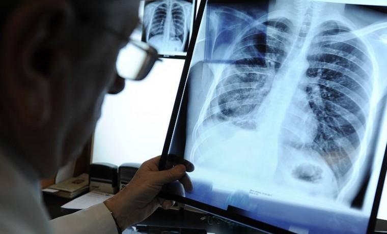 В России заболеваемость туберкулёзом достигла минимума за все время наблюдений
