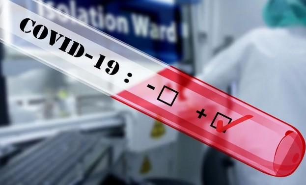 В России выявили 8731 новый случай заражения COVID-19