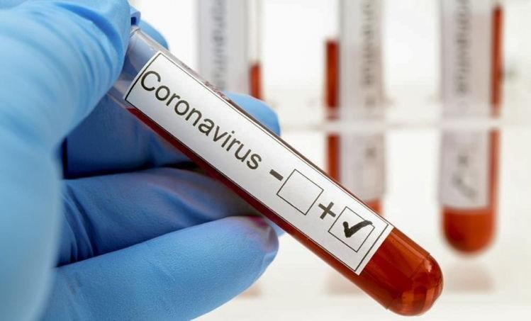 В России за сутки выявили 8 115 случаев заражения COVID-19