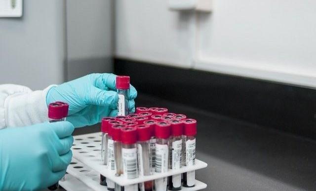 В России впервые выявлено более 28 тысяч случаев коронавируса за сутки